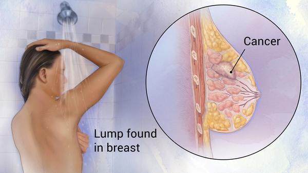 Oncologist in Nashik | Cancer Specialist in Nashik | Onco Surgeon in Nashik